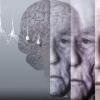 Деменция - бу тафаккур бузилишими?