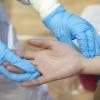 Fransiyalik shifokorlar koronavirusning yangi belgilarini ma'lum qildi
