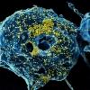 Koronavirus: o'lim holatining asosiy omillari