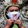 Koronavirus: Braziliya jahon reytingida Rossiyadan o'tib ketdi
