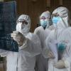 Xitoylik shifokorlar koronavirusni ayollar erkaklarga qaraganda osonroq yengishini aniqlashdi