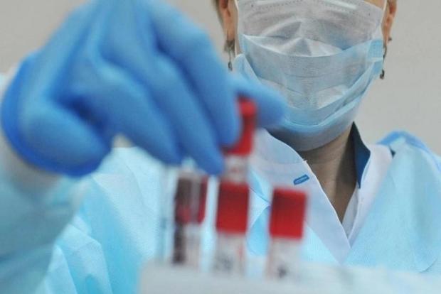 Коронавирус инфекцияси аниқланган беморларнинг аҳволи тўғрисида маълумот берилди