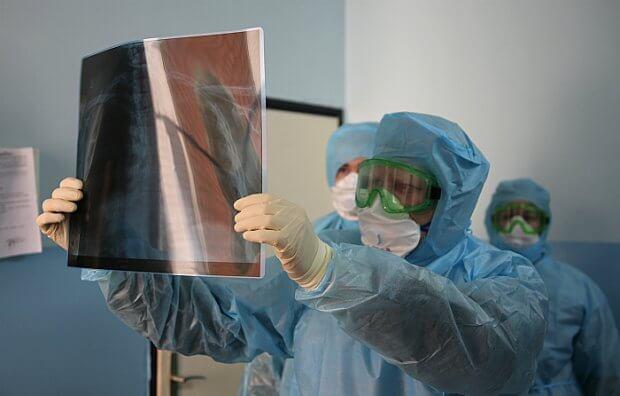 Дунё бўйича коронавирусга чалинганлар сони 1 млн 854 мингдан ошди