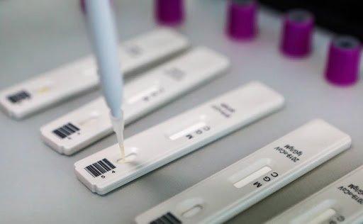 Ўзбекистонда коронавирусга иммунитетни аниқлаш тестлари ўтказилиши бошланди