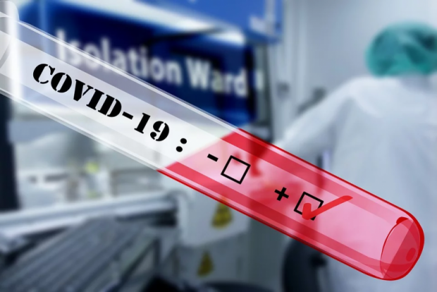 Koronavirus: O'zbekistonda yana 738ta yangi holat qayd etildi