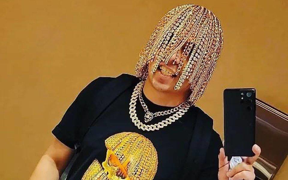 Мексикалик хонанда Dan Sur бошига тилла занжирларни имплантация қилдирди